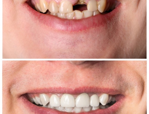 Regain Your Self-Confidence With an Implant-enhanced Smile