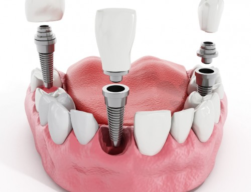 The Best Dental Implant Technology Produces The Best Smiles