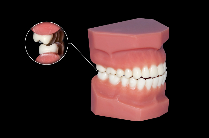 harrell dental implant center charlotte nc single bridge all-on-4 snap-in denture stabilization ballantyne 28277