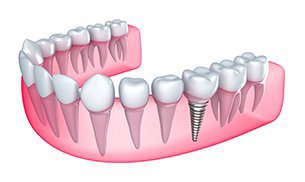Single Dental Implant Charlotte
