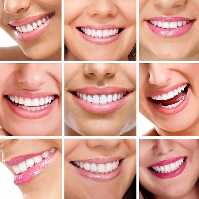 Harrell-Dental-Implant-Center-Charlotte-NC-straight-smile-dental-implant-therapy