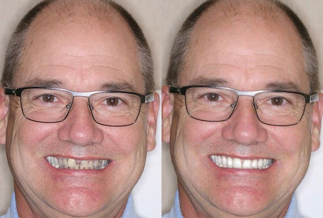 before-and-after-dental-implant-patient-3