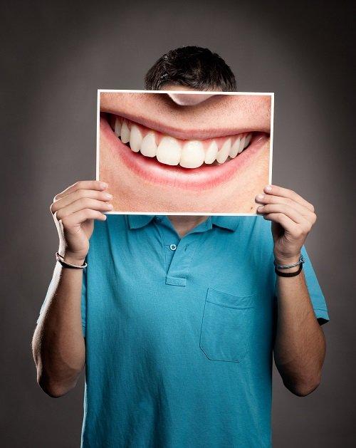 Harrell-Dental-Implant-Center-Charlotte-NC-hypodontia-missing-adult-teeth.
