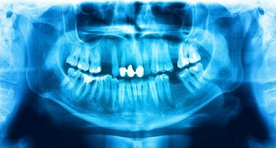 Harrell-Dental-Implant-Center-Charlotte-NC-missing-adult-teeth