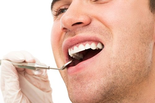 Harrell-Dental-Implant-Center-Charlotte-NC-tooth-whitening-prior-to-dental-implants
