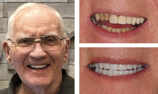 before-after picture for dental implants charlotte - Anita