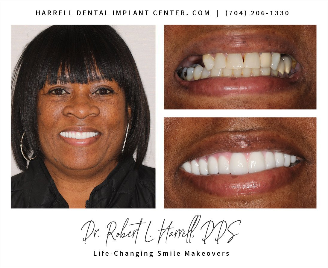 Dental Implants all on 4 with Grace S