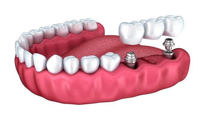 Harrell Dental Implant Center