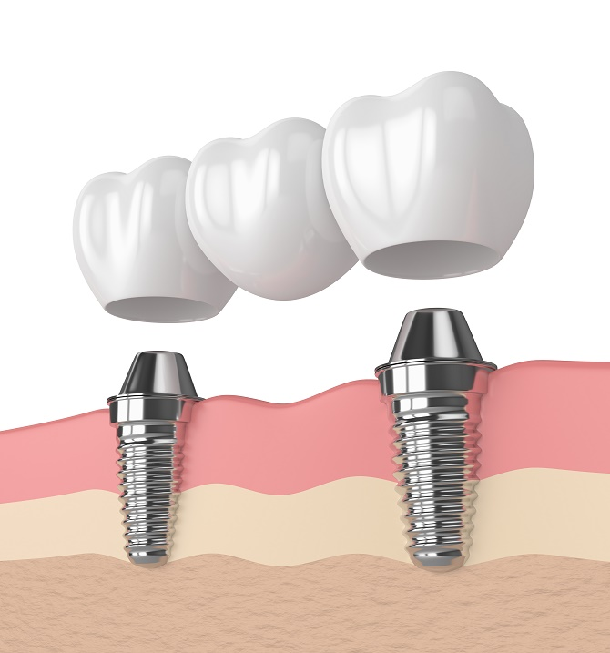 Harrell Dental Implant Center