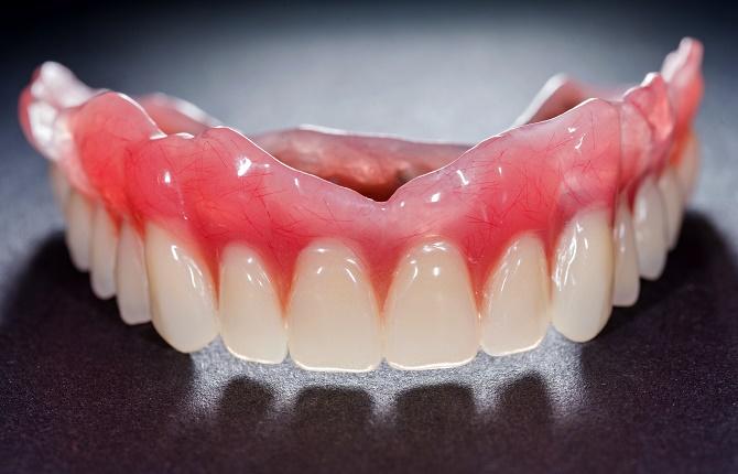 dentures dental implants stabilization charlotte nc dentist implant center